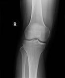 radiologiczny wizerunek perfect noga i kolano Zdjęcia Royalty Free