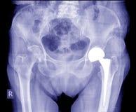 Radiologiczny wizerunek poczta operaci sumy biodra zastępstwo obraz royalty free