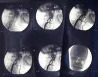 Radiologie 5 neufs Photos libres de droits