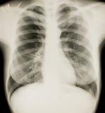 Radiologie, Brustradiographie Lizenzfreie Stockfotos