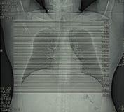 Radiologie, gegevens verwerkte tomografie van borst Royalty-vrije Stock Fotografie