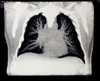 Radiologie, multislice die tomograph van borst gegevens wordt verwerkt Royalty-vrije Stock Afbeeldingen