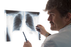 Radiologist with chest x-ray. Radiologist examining a chest x-ray against a light box and holding a pen as pointer stock image