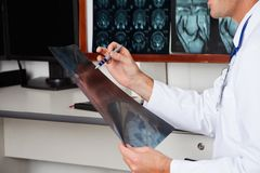 Radiologist Holding X-ray Royalty Free Stock Images