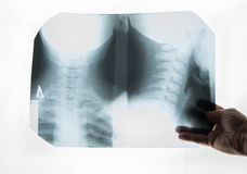 Radiologist holds in his hand X-ray stock image