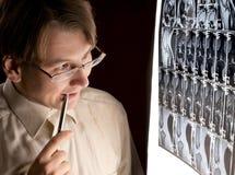 Radiologo imbarazzato che esamina MRI Fotografie Stock