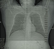 Radiology, computed tomography of chest Royalty Free Stock Photography