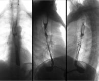 X-ray of the upper gastrointestinal series UGI with barium. Cancer of the esophagus. Negative.