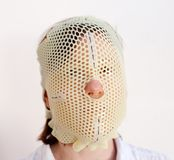 Radiotherapy Mask. Female patient wearing a custom made Thermoplastic Radiotherapy Mask Stock Images