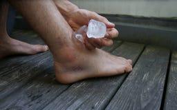Raffreddamento della mia caviglia ferita immagini stock libere da diritti