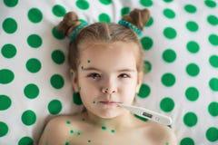 Ragazza che soffre dalla varicella Fotografia Stock Libera da Diritti