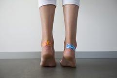 Ragazza con i cerotti adesivi sulle bolle Fotografia Stock