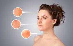 Ragazza con i segni facciali della freccia di cura dello sci nocivo Immagine Stock