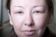 Ragazza con l'edema allergene Fotografie Stock Libere da Diritti