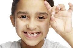 Ragazza con la mancanza del dente di fronte fotografie stock