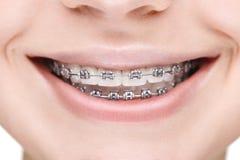 Ragazza di vasto sorriso con i ganci del metallo closeup Fotografie Stock Libere da Diritti