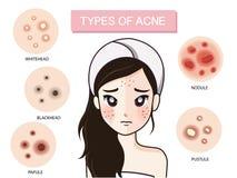 Ragazza e tipo di acne illustrazione vettoriale