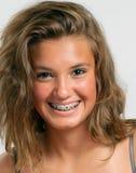 Ragazza teenager con le parentesi graffe blu Fotografia Stock Libera da Diritti