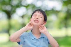 Ragazzo che graffia il suo fronte di allergia all'aperto Fotografia Stock Libera da Diritti