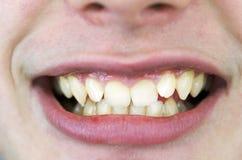 Ragazzo che ha bisogno dei ganci, sorriso Fotografie Stock Libere da Diritti
