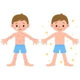Ragazzo con e senza dermatite Fotografia Stock