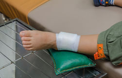 Ragazzo del bambino con la fasciatura sulla gamba e sul riposarsi il letto di ospedale fotografie stock