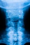 Raggi x cervicali della spina dorsale fotografia stock
