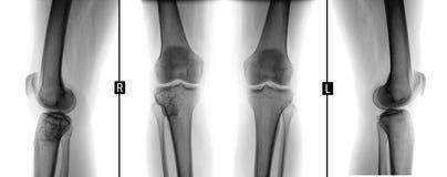 Raggi x dei giunti di ginocchio Tumore gigante delle cellule della destra tibiale Negativo fotografia stock libera da diritti
