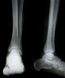 Raggi X dei piedini Fotografia Stock