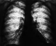 Raggi x dei polmoni Immagini Stock