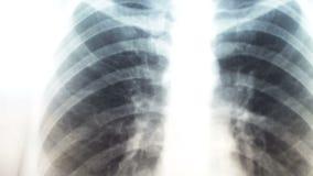 Raggi x dei polmoni umani Sistemi diagnostici per la prevenzione del cancro polmonare video d archivio