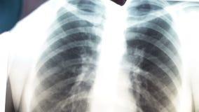 Raggi x dei polmoni umani Sistemi diagnostici per la prevenzione del cancro polmonare stock footage