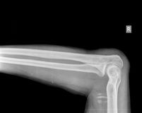 Raggi x del braccio Immagini Stock Libere da Diritti