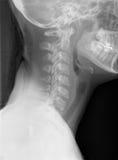 Raggi X del collo fotografia stock