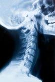 Raggi x del collo e del cranio - vista laterale fotografia stock libera da diritti