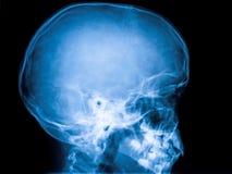 Raggi x del cranio Immagine Stock
