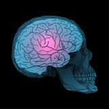 Raggi x del cranio umano con il cervello Fotografia Stock Libera da Diritti