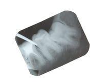 Raggi X del dente Fotografia Stock