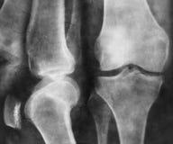 Raggi x del ginocchio Immagine Stock