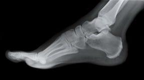 Raggi X del lato del piede destro Immagini Stock Libere da Diritti