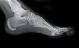 Raggi X del lato del piede sinistro Fotografia Stock