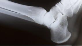 Raggi X del piede Immagine Stock Libera da Diritti