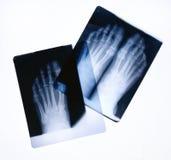 Raggi X del piede Immagini Stock Libere da Diritti