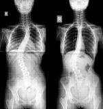 Raggi x dell'essere umano di scoliosi Immagini Stock
