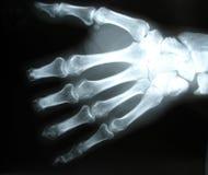 Raggi X della mano Fotografie Stock