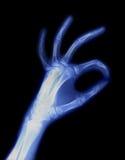Raggi X della mano Immagine Stock