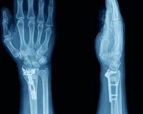 Raggi X della mano Fotografie Stock Libere da Diritti