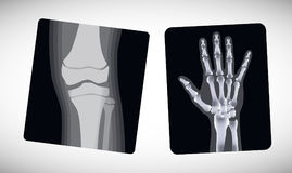 Raggi x della mano e del piede Vettore Immagini Stock