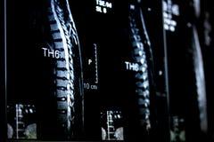 Raggi X della spina dorsale Fotografia Stock Libera da Diritti