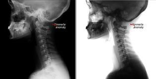 Raggi X della spina dorsale cervicale Anomalia di Kimerly indicatore immagini stock libere da diritti